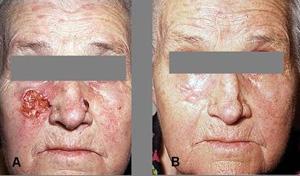 Фотодинамическая терапия предопухолевых заболеваний