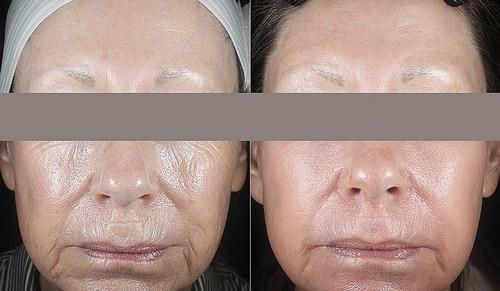 Фотодинамическое омоложение кожи