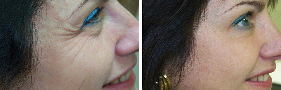 Результат инъекции ботокса под глаза